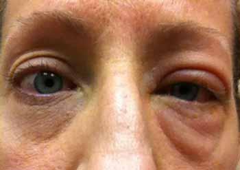 The Case of the Insane Eyeball